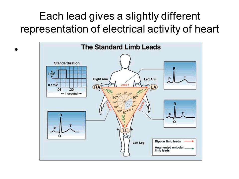 Each lead gives a slightly different representation of electrical activity of heart