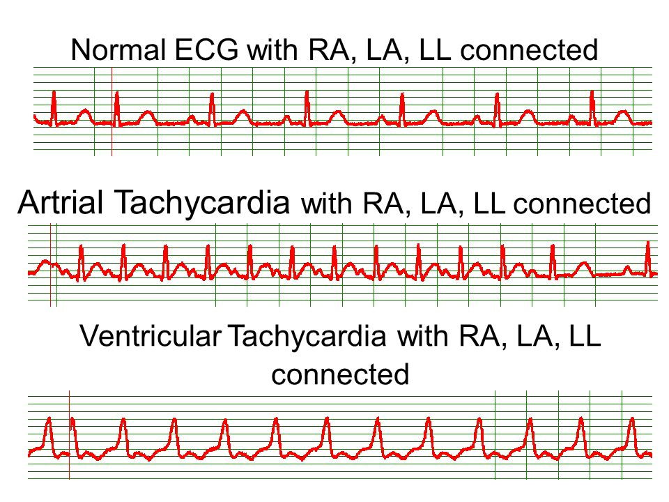 Normal ECG with RA, LA, LL connected
