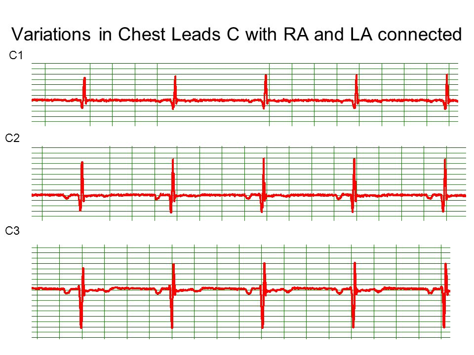 Variations in Chest Leads C with RA and LA connected