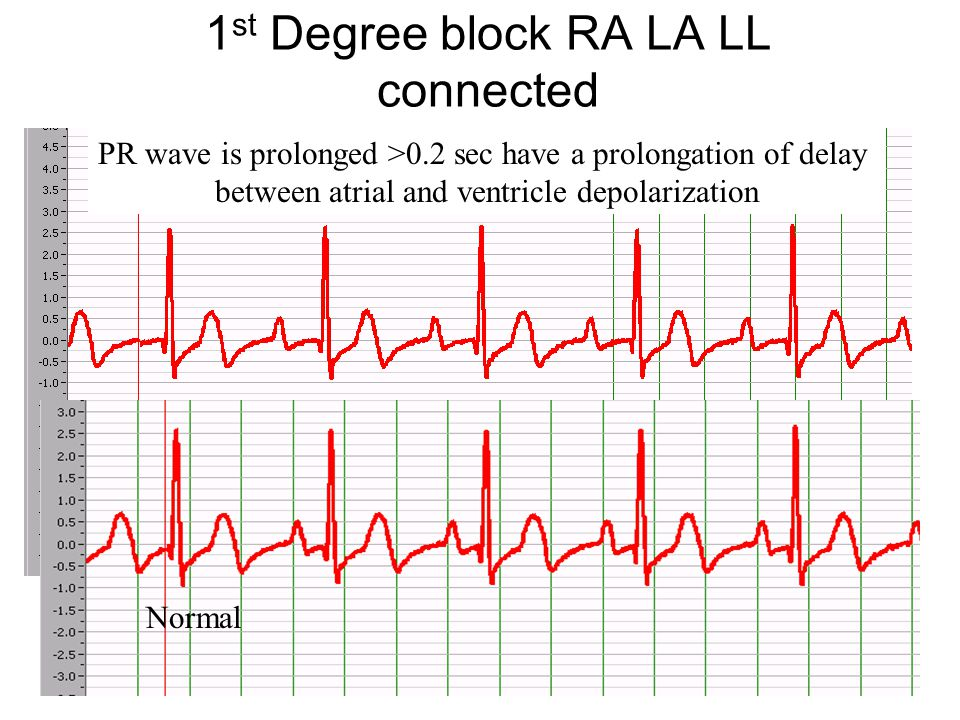 1st Degree block RA LA LL connected