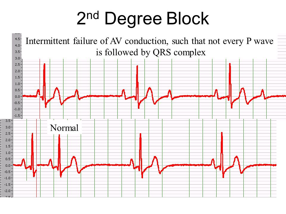 2nd Degree Block Intermittent failure of AV conduction, such that not every P wave. is followed by QRS complex.