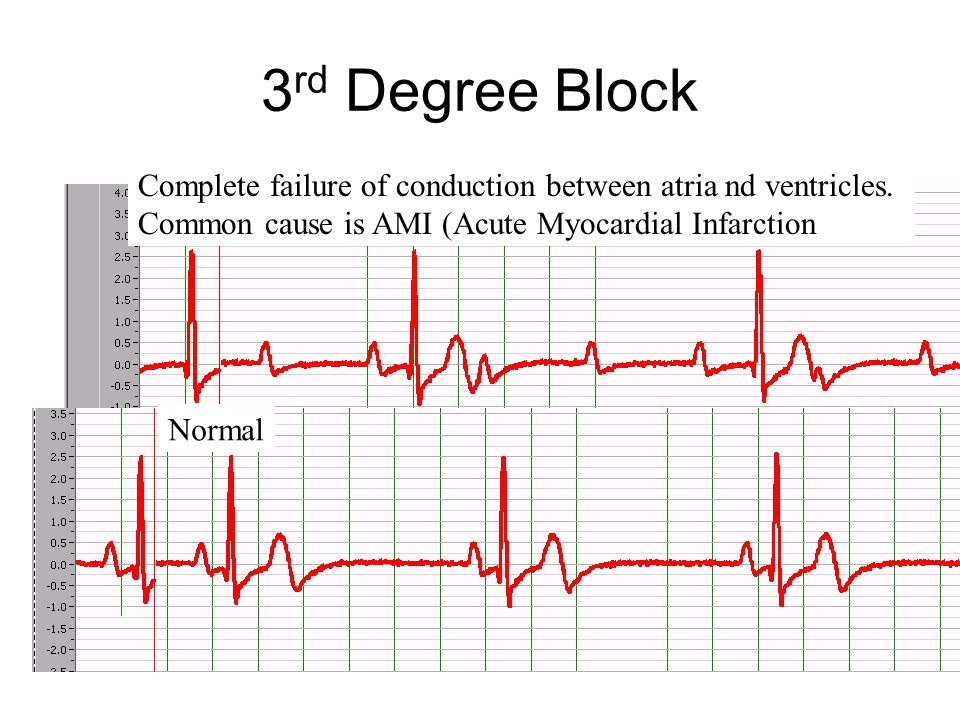 3rd Degree Block Complete failure of conduction between atria nd ventricles. Common cause is AMI (Acute Myocardial Infarction.