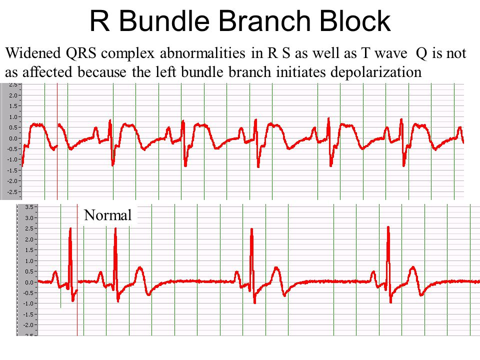 R Bundle Branch Block Widened QRS complex abnormalities in R S as well as T wave Q is not.