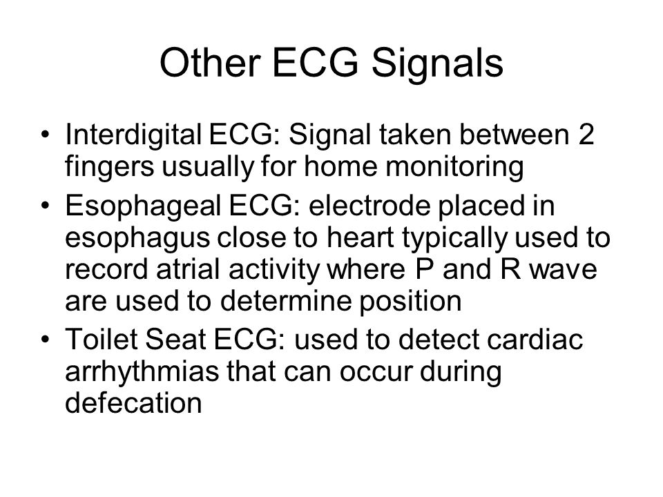 Other ECG Signals Interdigital ECG: Signal taken between 2 fingers usually for home monitoring.