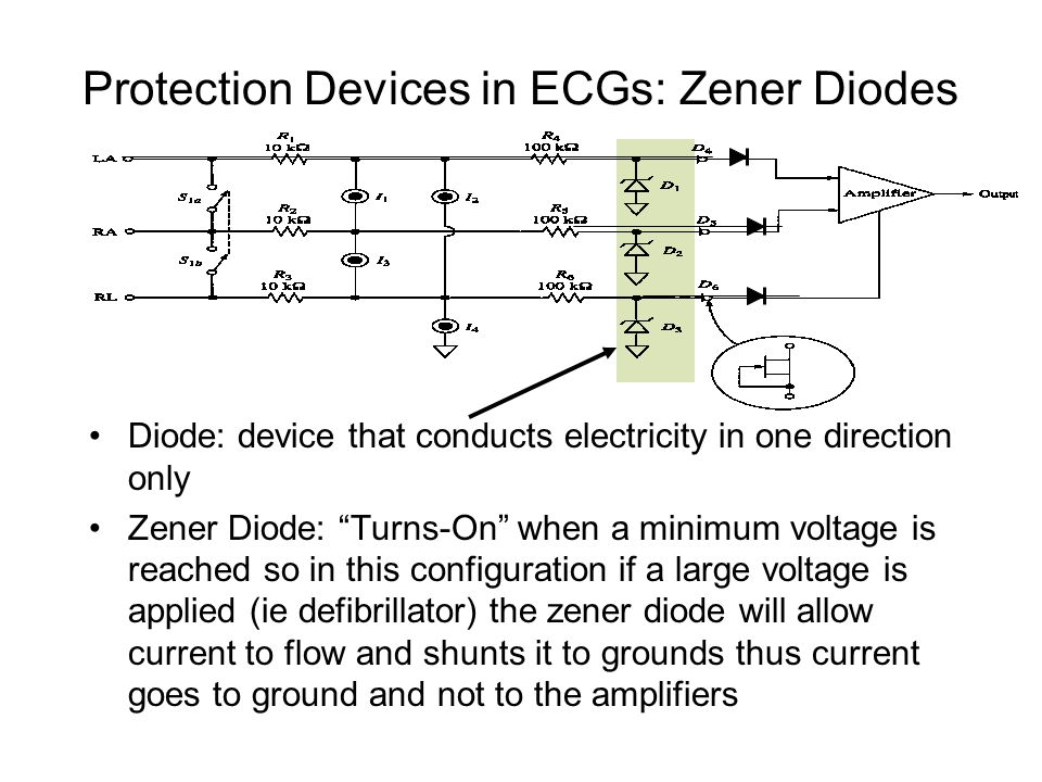 Protection Devices in ECGs: Zener Diodes