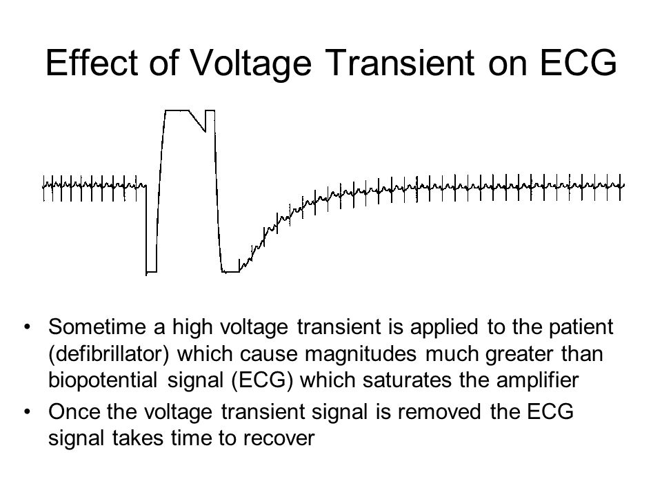 Effect of Voltage Transient on ECG