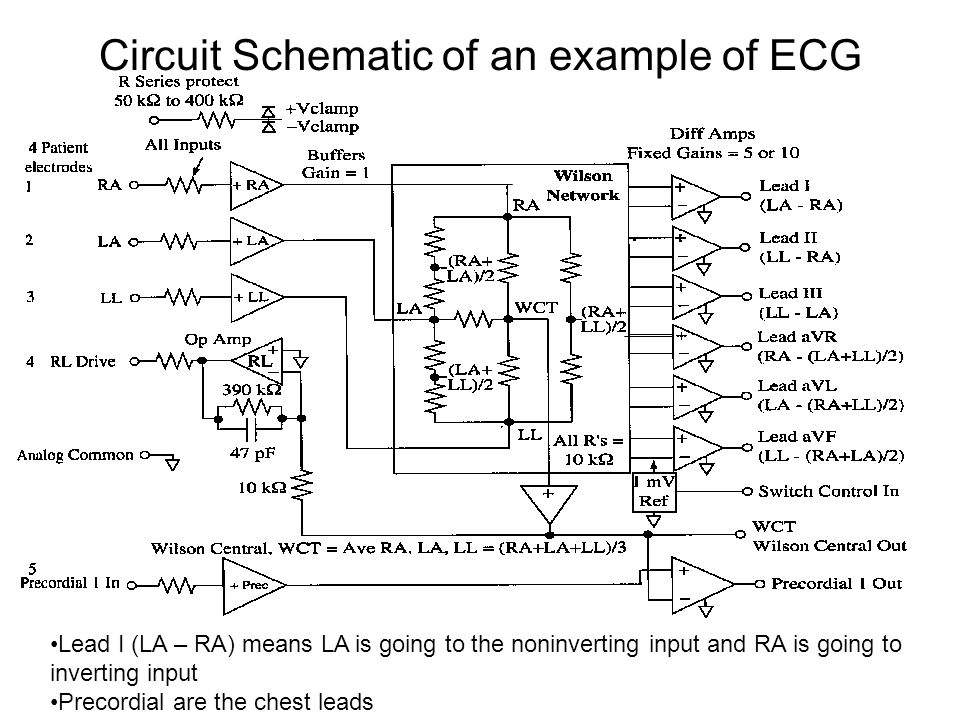Circuit Schematic of an example of ECG