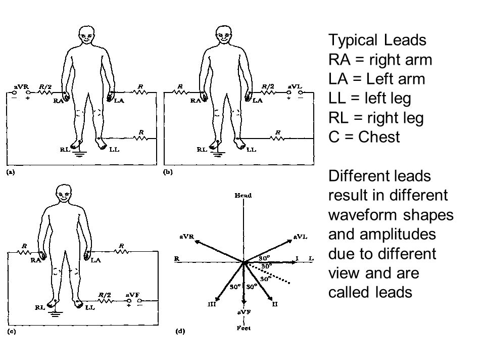 Typical Leads RA = right arm LA = Left arm LL = left leg RL = right leg C = Chest Different leads result in different waveform shapes and amplitudes due to different view and are called leads
