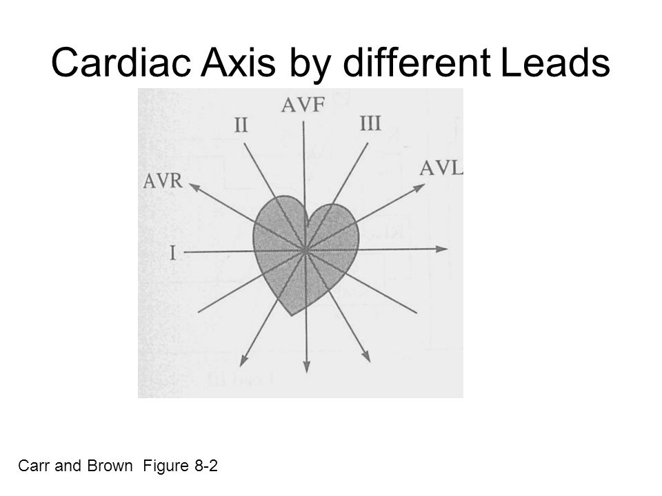 Cardiac Axis by different Leads
