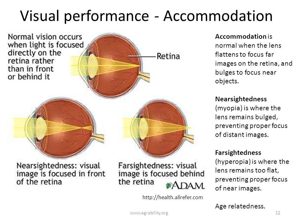 Visual performance - Accommodation