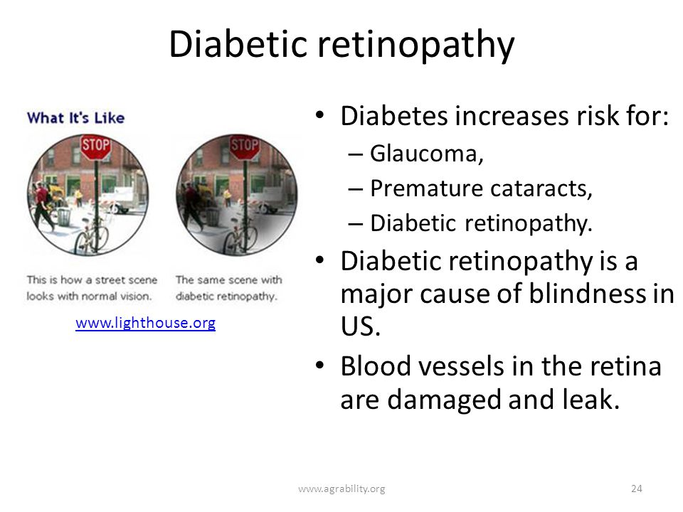 Diabetic retinopathy Diabetes increases risk for: