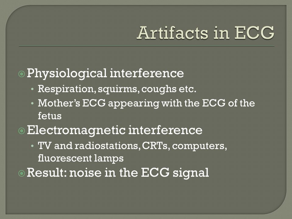 Artifacts in ECG Physiological interference