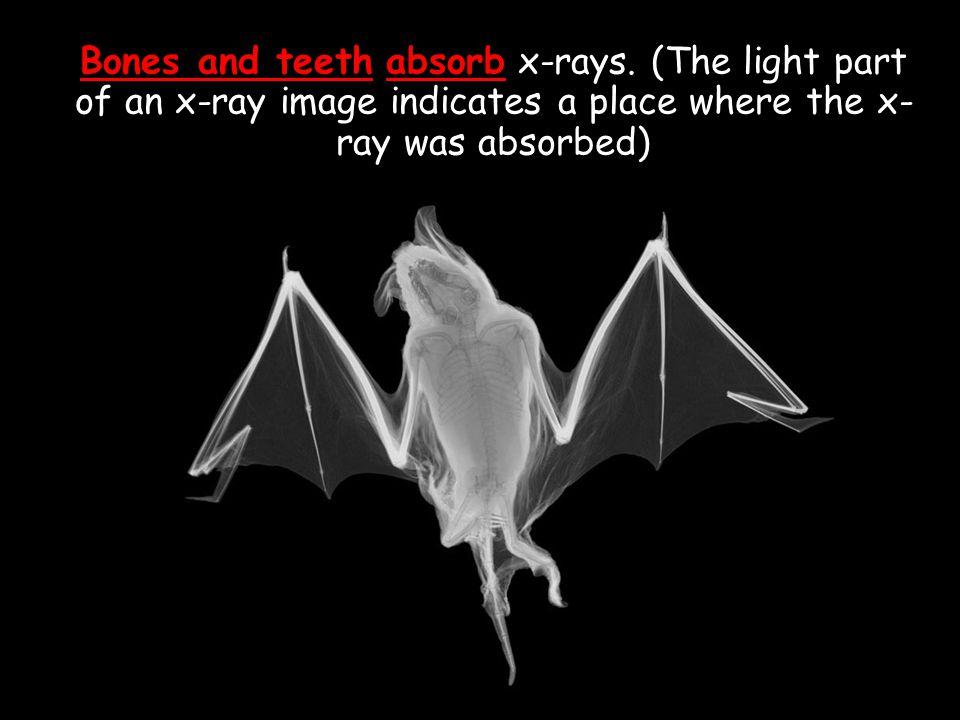 Bones and teeth absorb x-rays