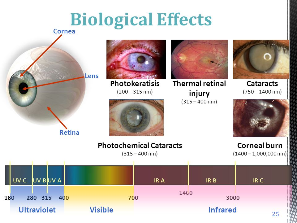 Biological Effects Photokeratisis (200 – 315 nm)