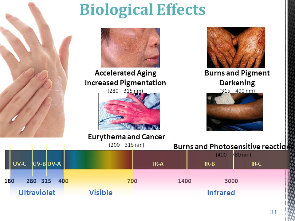 Biological Effects Accelerated Aging Increased Pigmentation (280 – 315 nm) Burns and Pigment Darkening (315 – 400 nm)