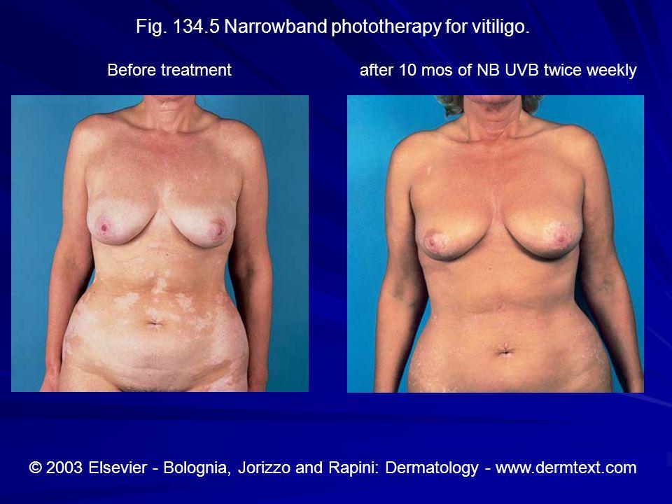 Fig. 134.5 Narrowband phototherapy for vitiligo.