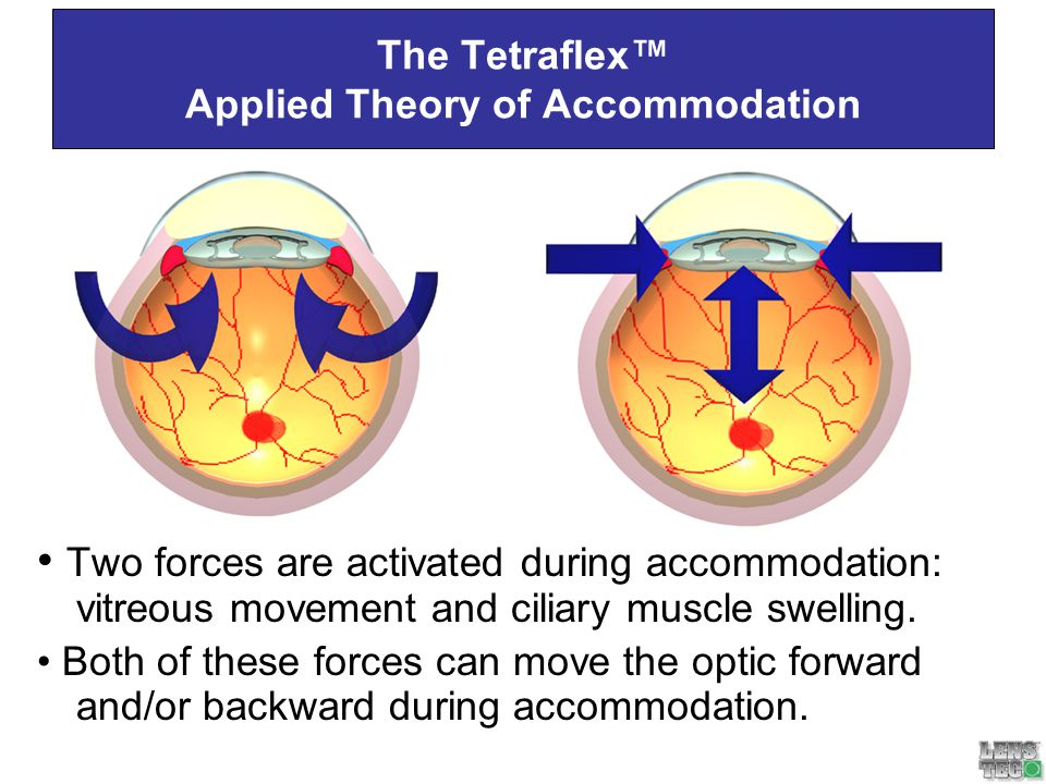 The Tetraflex™ Applied Theory of Accommodation