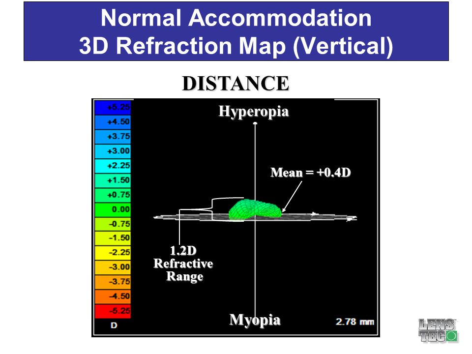 Normal Accommodation 3D Refraction Map (Vertical)