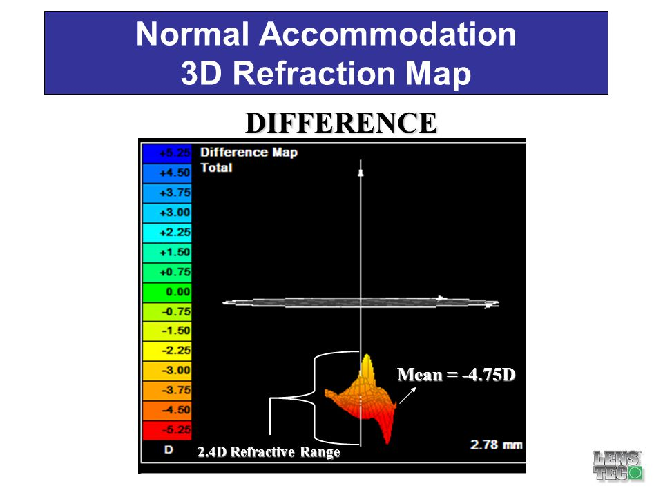 Normal Accommodation 3D Refraction Map