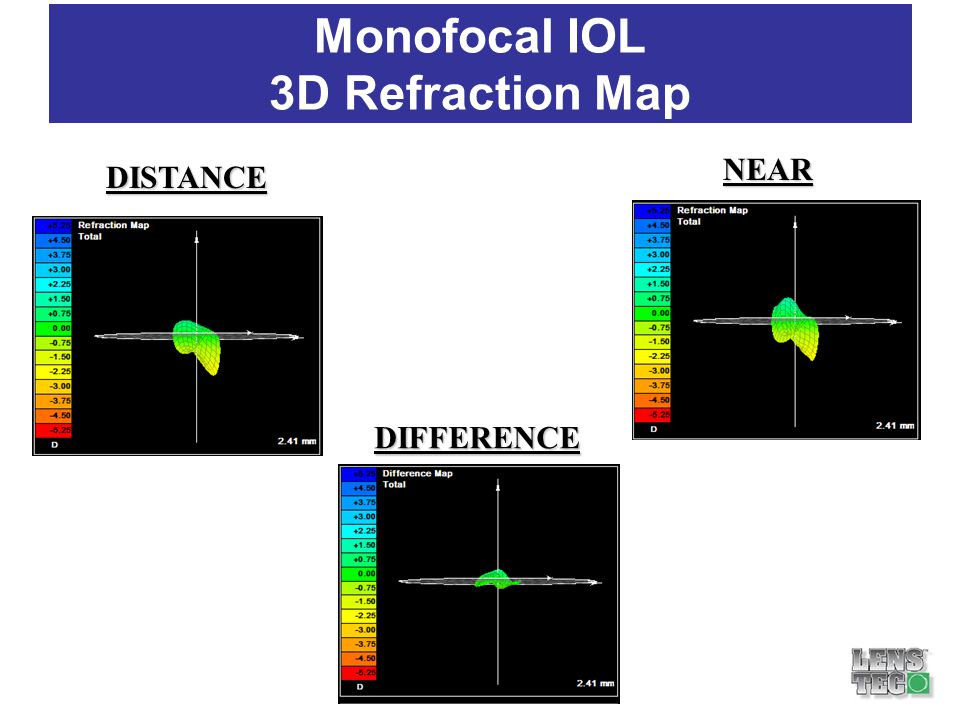 Monofocal IOL 3D Refraction Map