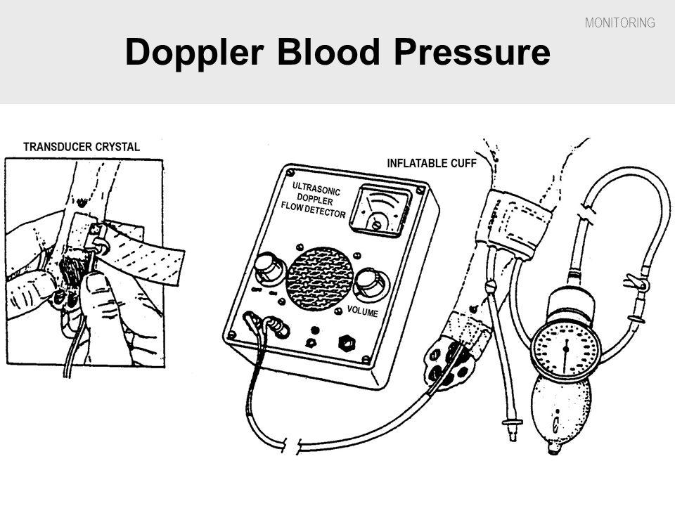 Doppler Blood Pressure