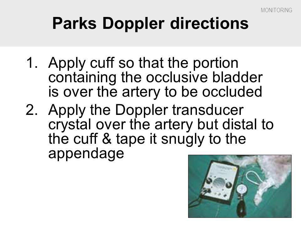 Parks Doppler directions