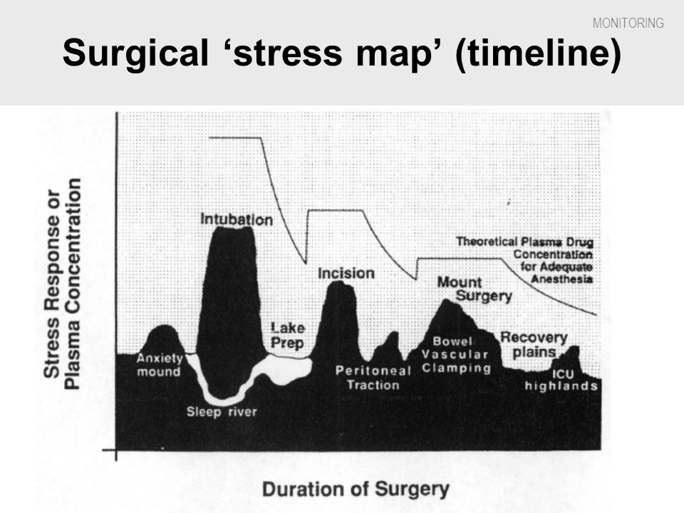 Surgical 'stress map' (timeline)