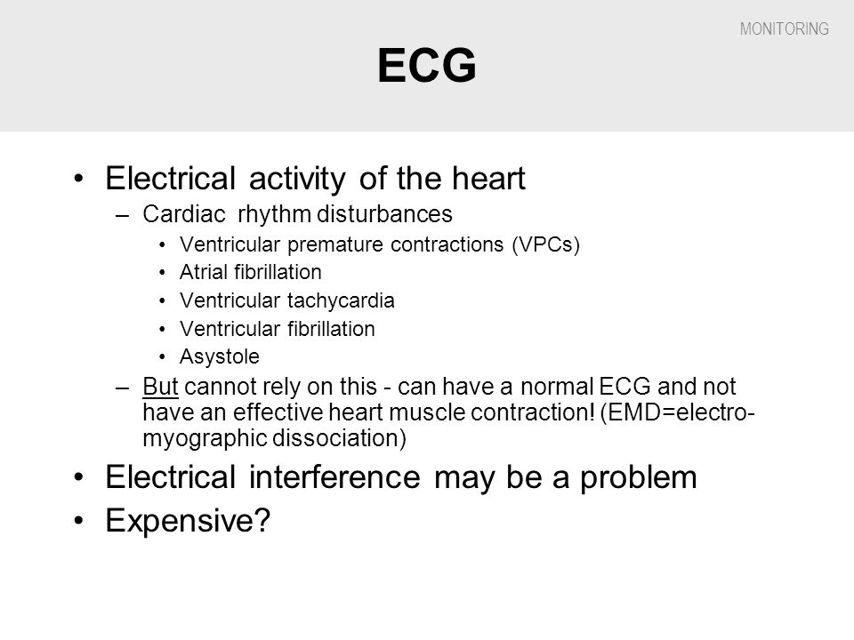 ECG Electrical activity of the heart