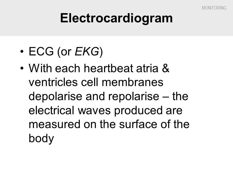 Electrocardiogram ECG (or EKG)