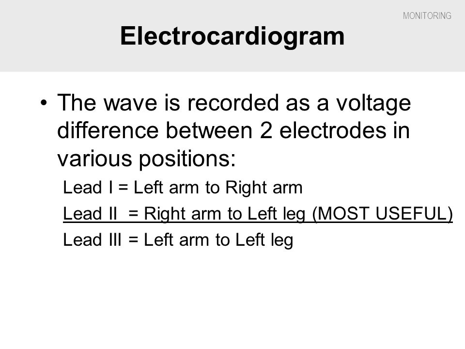 Electrocardiogram The wave is recorded as a voltage difference between 2 electrodes in various positions: