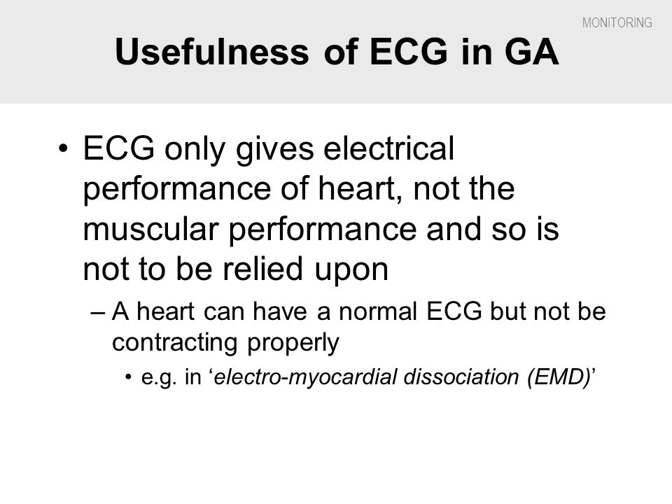 Usefulness of ECG in GA ECG only gives electrical performance of heart, not the muscular performance and so is not to be relied upon.