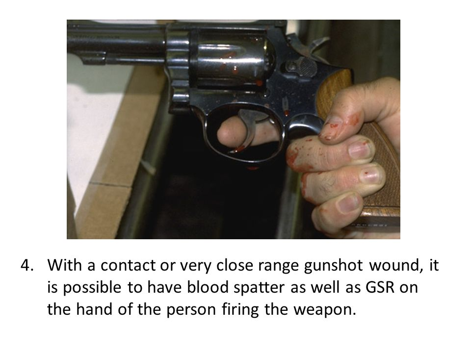 With a contact or very close range gunshot wound, it is possible to have blood spatter as well as GSR on the hand of the person firing the weapon.