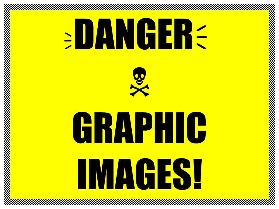 DANGER  GRAPHIC IMAGES!