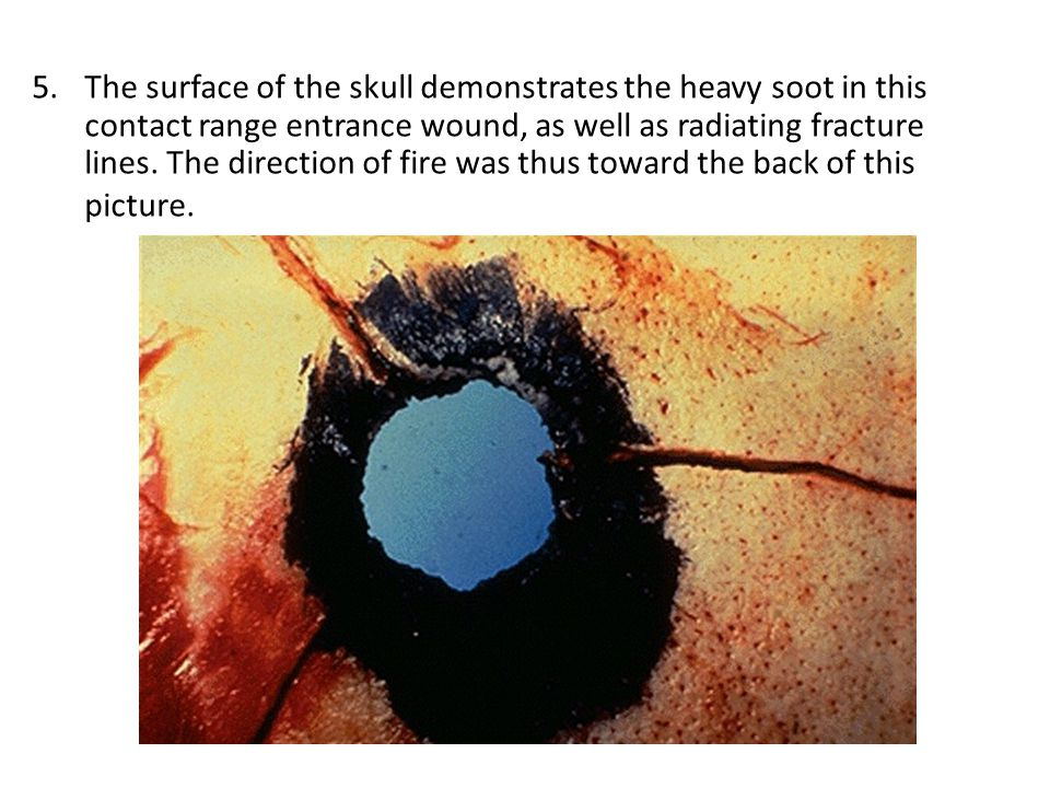 The surface of the skull demonstrates the heavy soot in this contact range entrance wound, as well as radiating fracture lines.