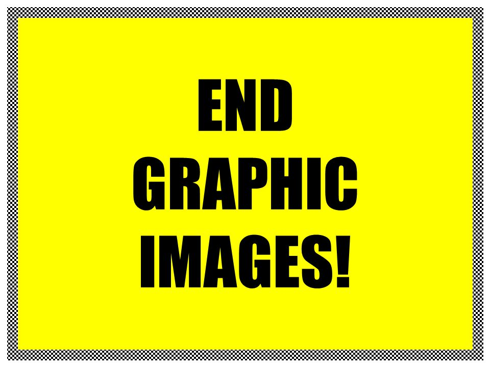 END GRAPHIC IMAGES!
