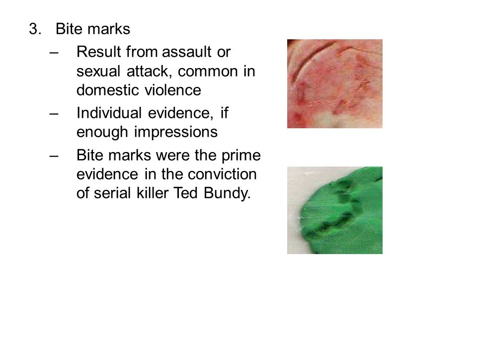 Bite marks Result from assault or sexual attack, common in domestic violence. Individual evidence, if enough impressions.