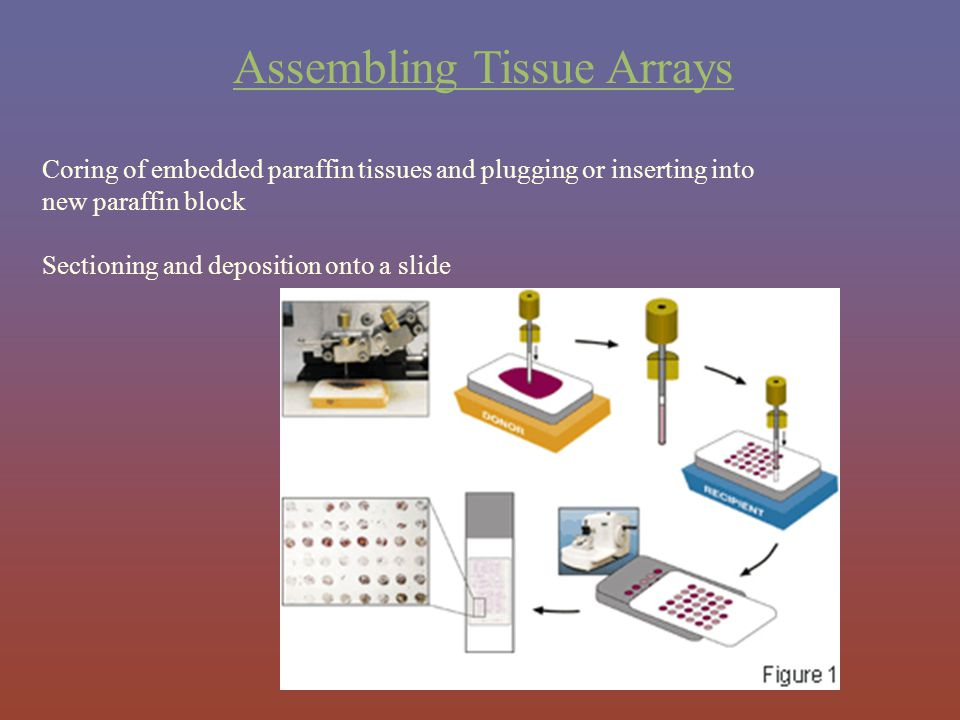 Assembling Tissue Arrays