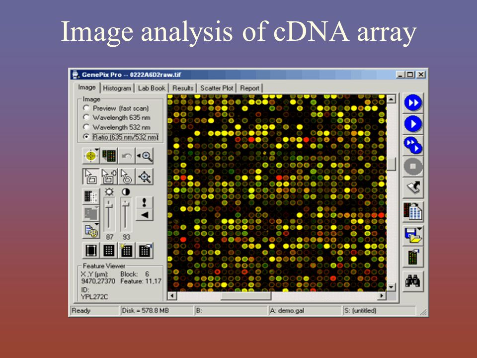 Image analysis of cDNA array
