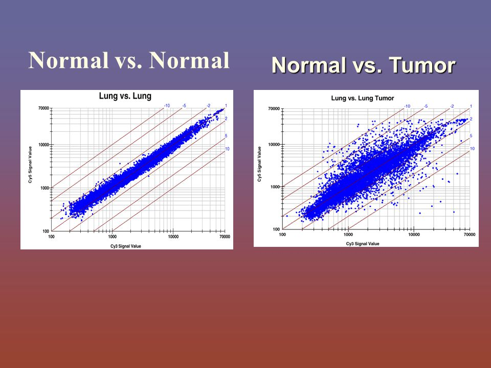 Normal vs. Normal Normal vs. Tumor
