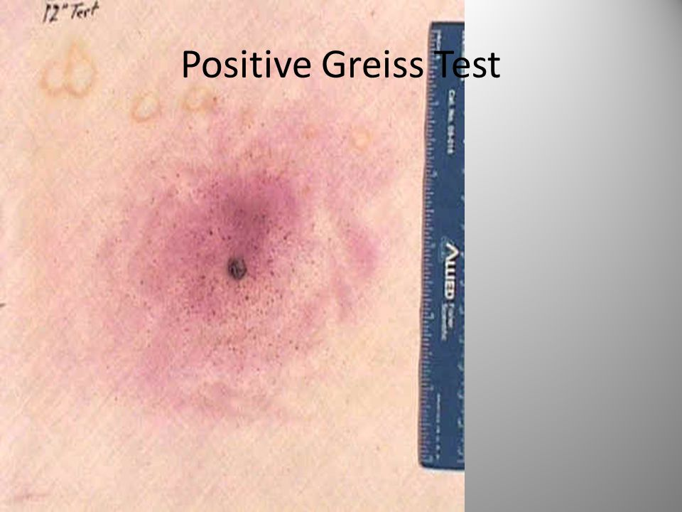 Positive Greiss Test