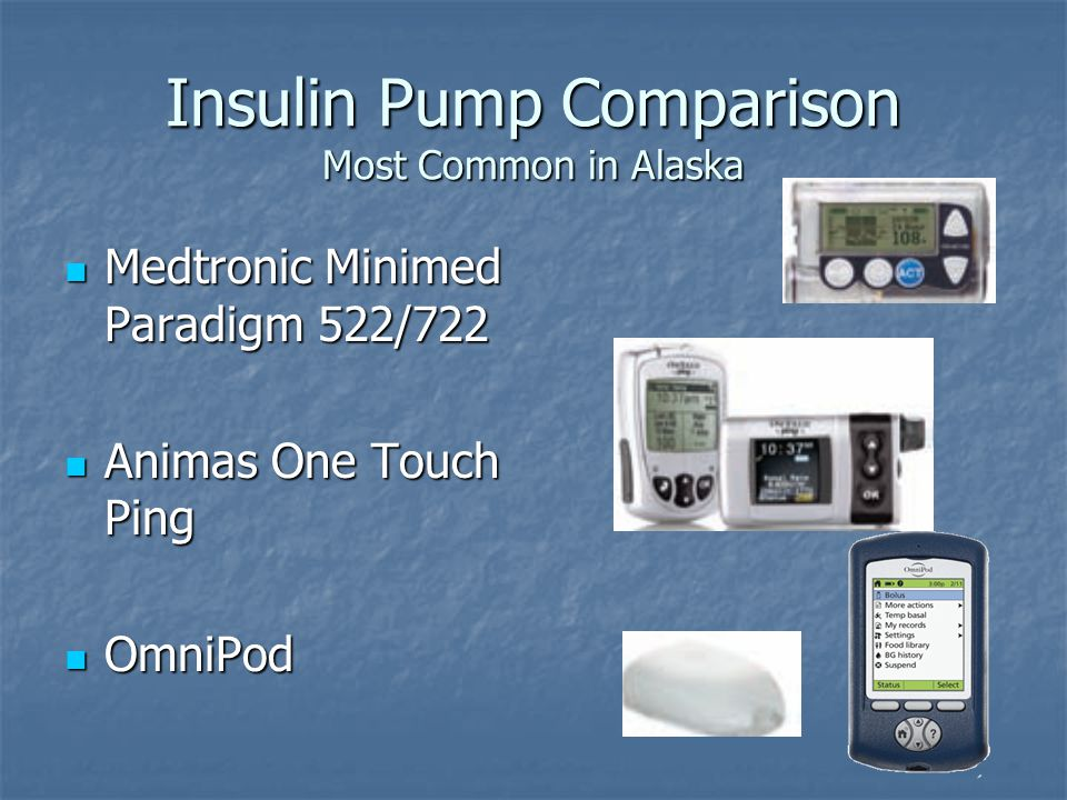 Insulin Pump Comparison Most Common in Alaska