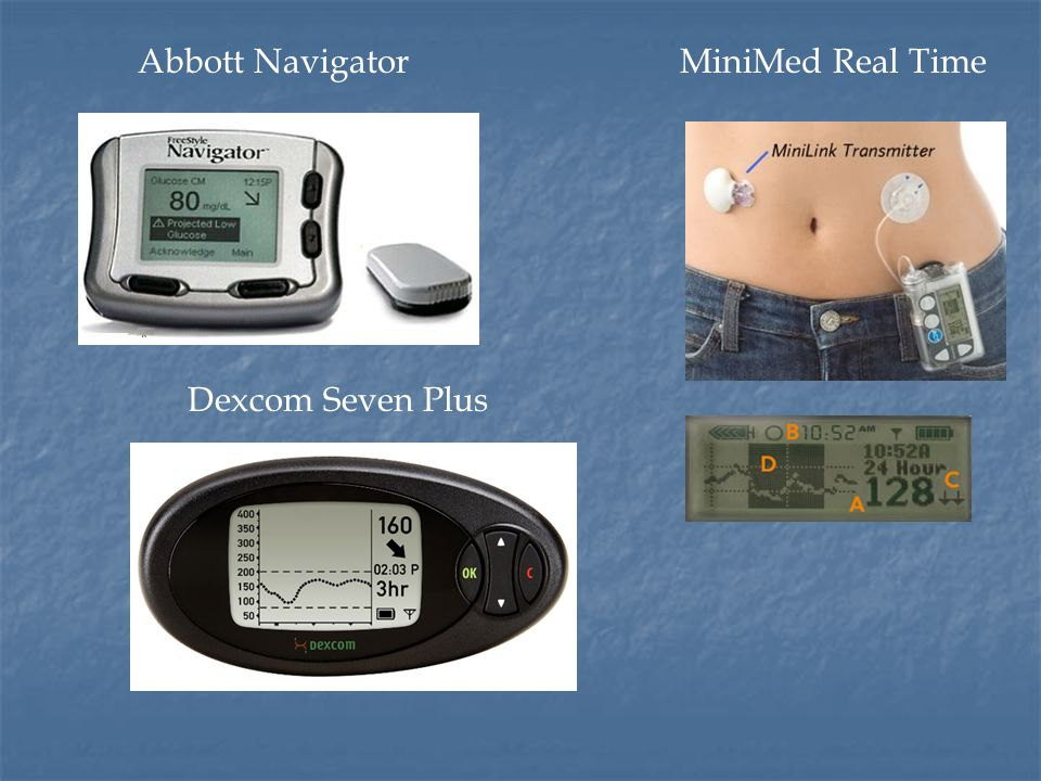 Abbott Navigator MiniMed Real Time Dexcom Seven Plus