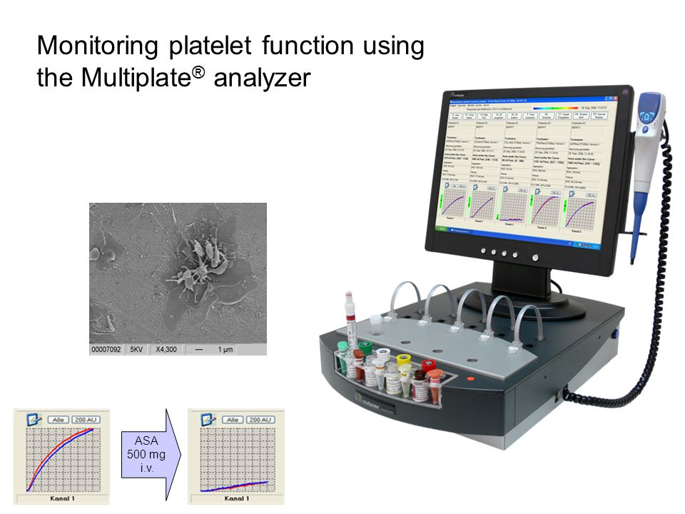 Monitoring platelet function using the Multiplate® analyzer