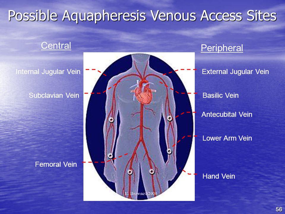 Possible Aquapheresis Venous Access Sites