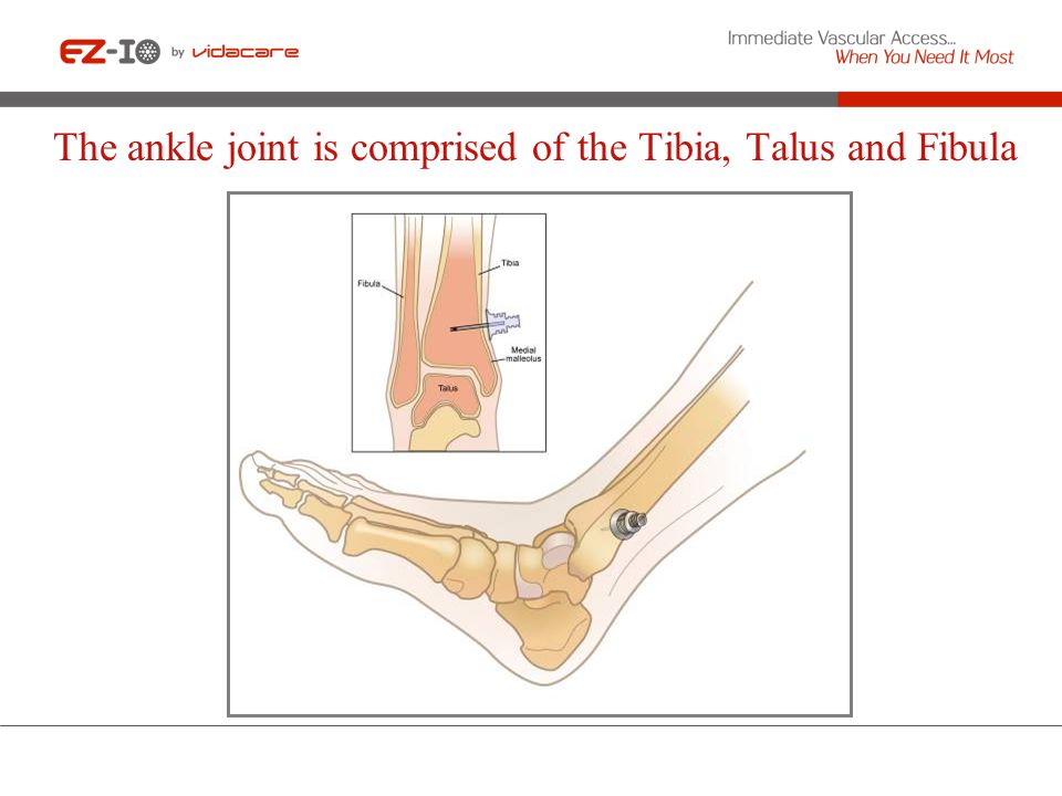 The ankle joint is comprised of the Tibia, Talus and Fibula