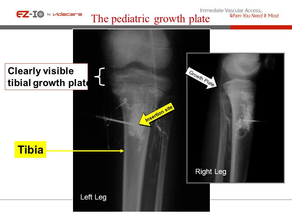 The pediatric growth plate