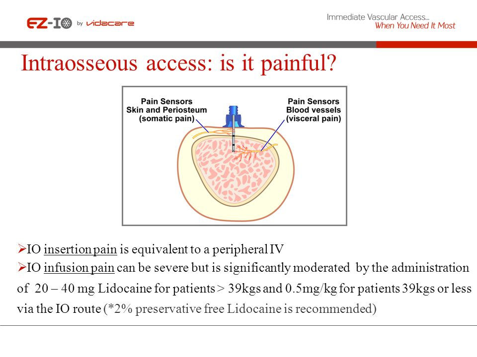 Intraosseous access: is it painful