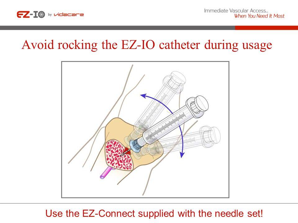 Avoid rocking the EZ-IO catheter during usage