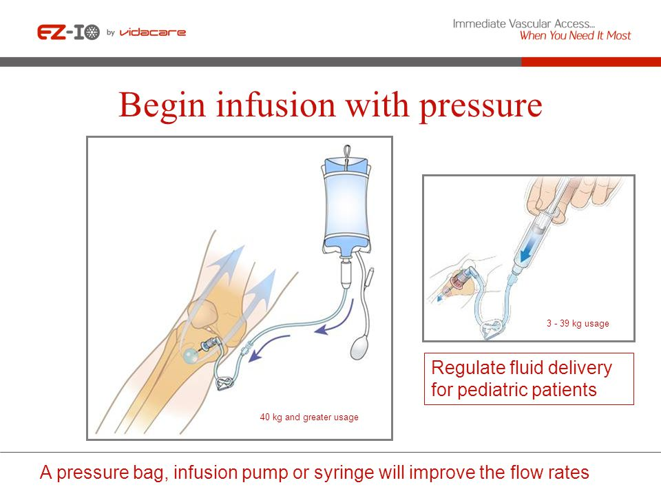 Begin infusion with pressure