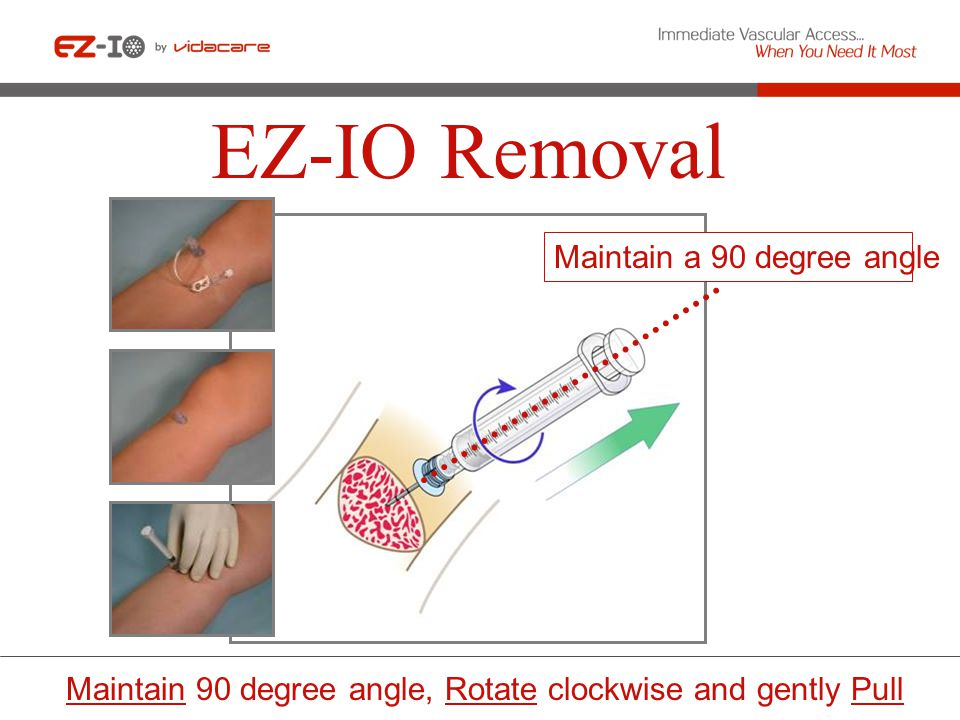 EZ-IO Removal Maintain a 90 degree angle